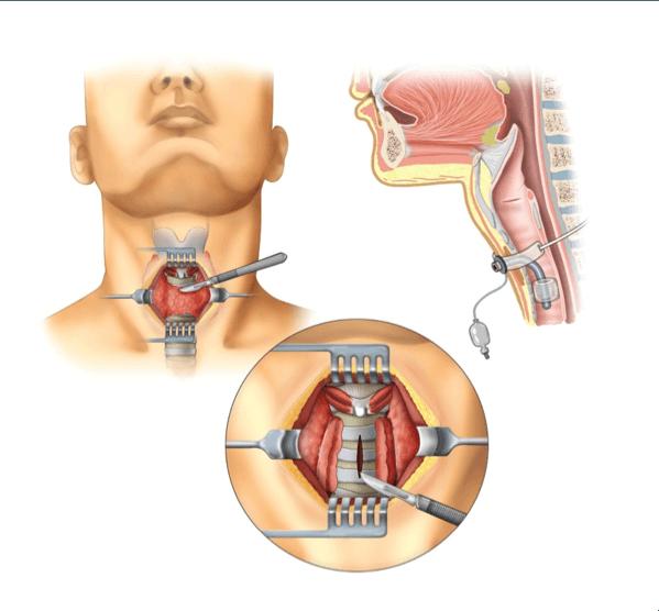 Figura 3. Incisione chirurgica della trachea