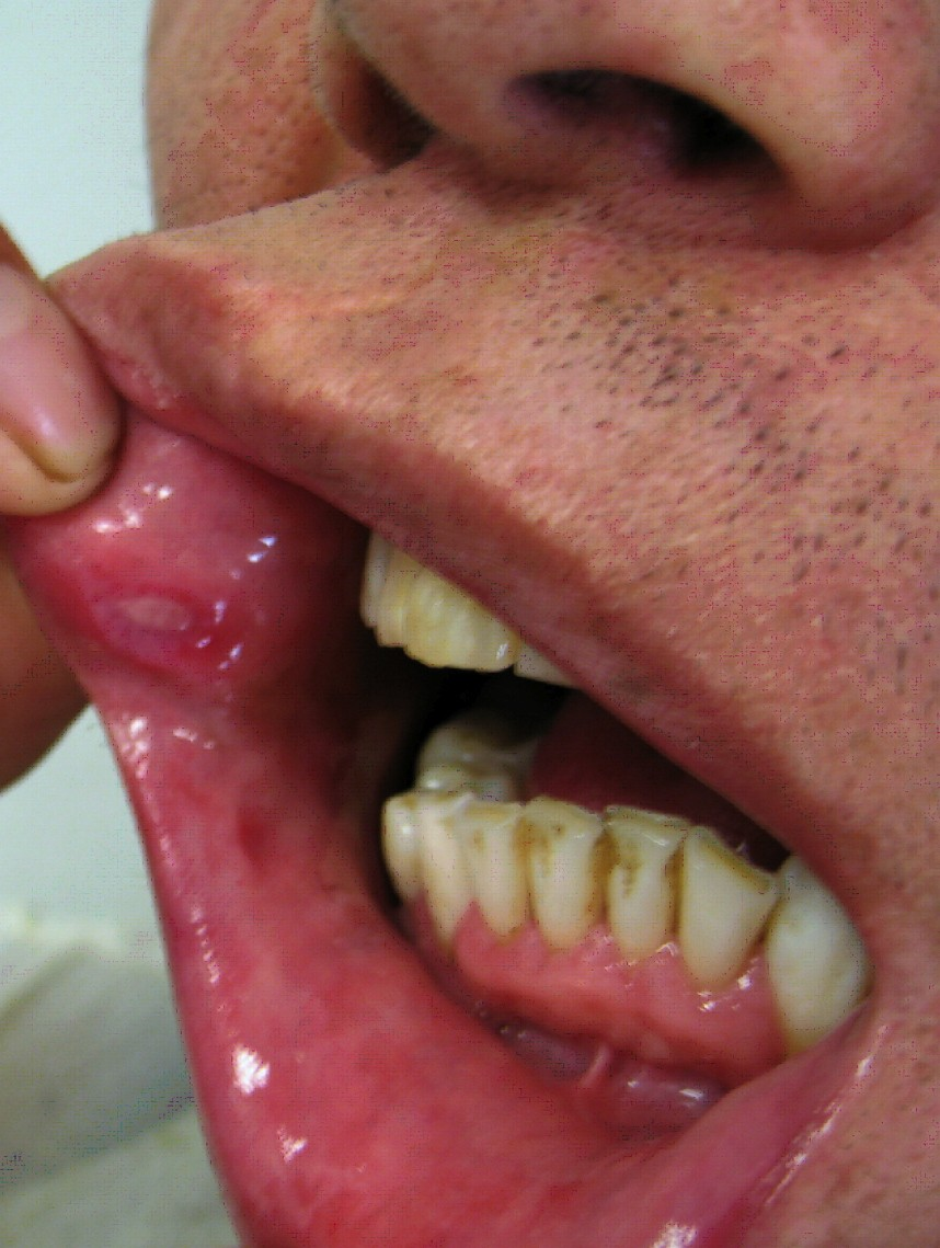 Behcets_disease