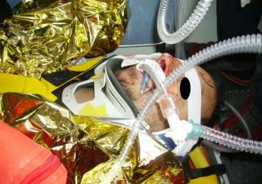 """Tesi """"La prevenzione delle complicanze del cavo orale nei pazienti intubati: uno studio descrittivo"""""""
