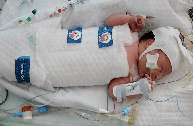 206Сестринский уход при энцефалопатии у новорожденных