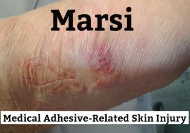 Cosa sono le MARSI e come prevenire i danni da rimozione dei cerotti