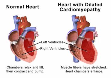 Nuovo marker di rischio aritmico per pazienti con cardiomiopatia ipertrofica
