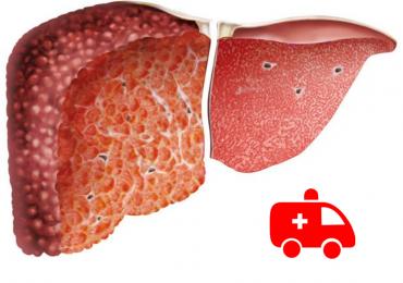 La valutazione della medicina d'urgenza e la gestione del paziente con cirrosi 2