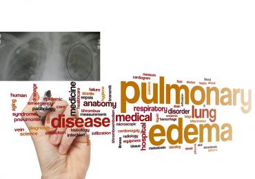 Cause non cardiogene di edema polmonare 1