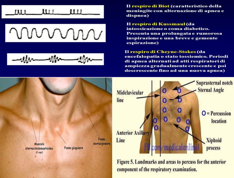 Disordini respiratori nello stato di incoscienza 1