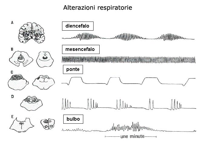 Disordini respiratori nello stato di incoscienza