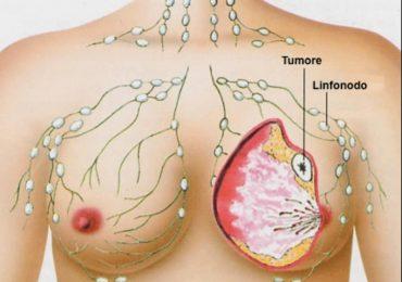 NeXT. Percorso diagnostico-terapeutico della paziente affetta da neoplasia mammaria