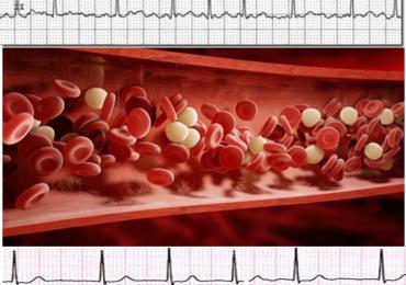 Utilizzo anticoagulanti orali in pazienti con fibrillazione atriale: le Linee guida 2018