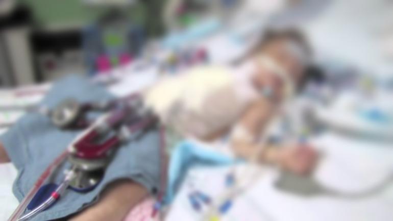 Bambin Gesù: un cuore artificile in miniatura salva la vita ad una piccola paziente 2