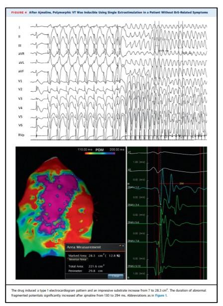 Sindrome di Brugada: descritta per la prima volta l'anomalia elettrica che colpisce il cuore 3