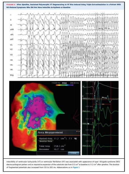 Sindrome di Brugada: descritta per la prima volta l'anomalia elettrica che colpisce il cuore 5