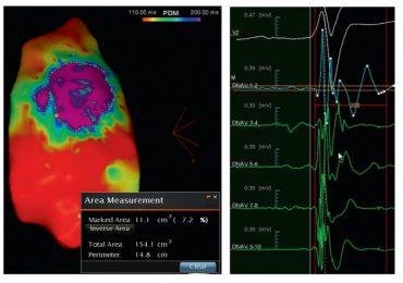 Sindrome di Brugada: descritta per la prima volta l'anomalia elettrica che colpisce il cuore 6