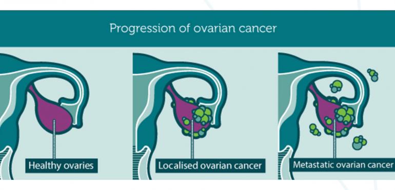 8 maggio, giornata mondiale del tumore Ovarico. La storia di Laura