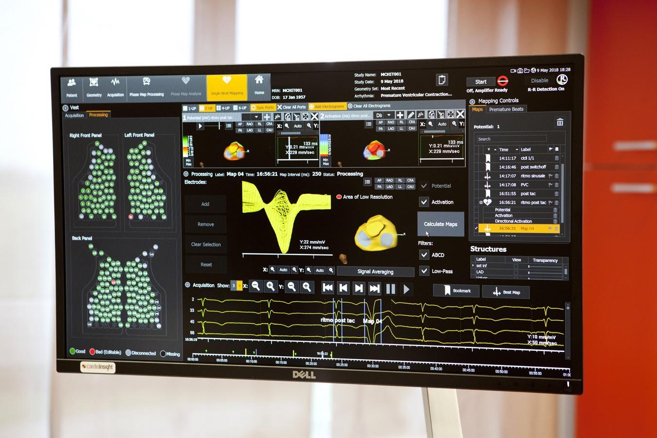 CardioInsight: il giubbotto hi-tech per capire in quale punto originano le aritmie cardiache 2
