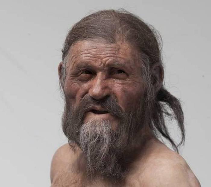 L'uomo dei ghiacci soffriva di aterosclerosi