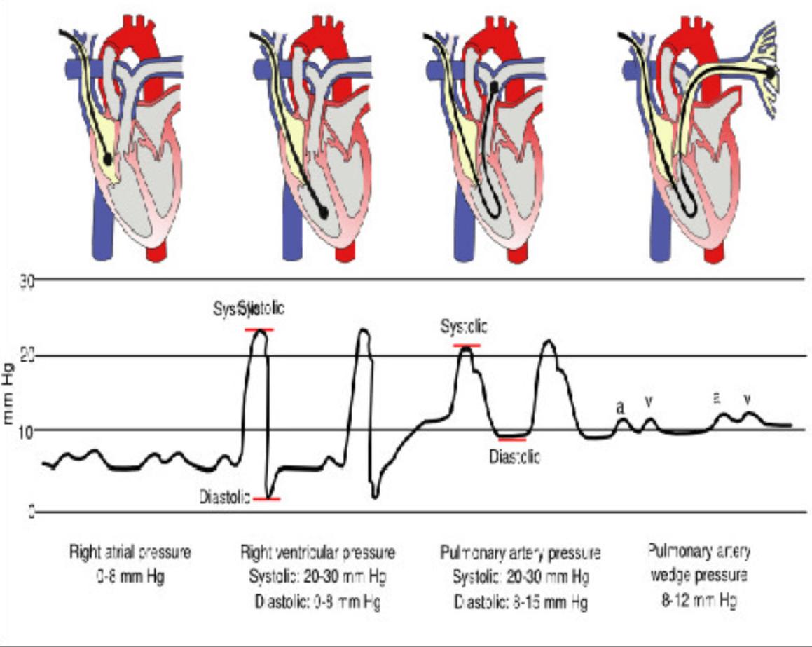 Monitoraggio del paziente critico con il Catetere di Swan-Ganz 1