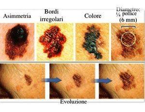 Attenti al sole! I consigli per l'esposizione e la diagnosi precoce del melanoma 1