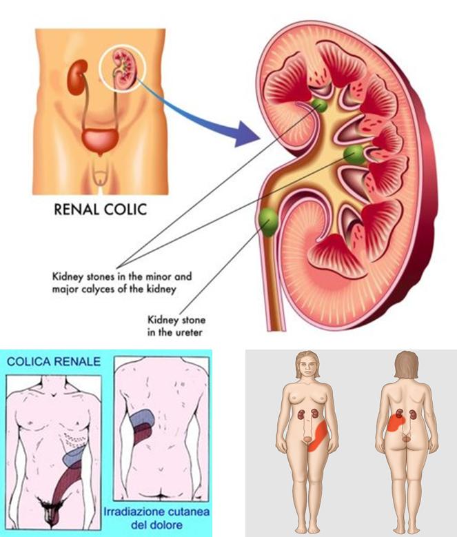 Colica renale e terapia: quale la strategia?