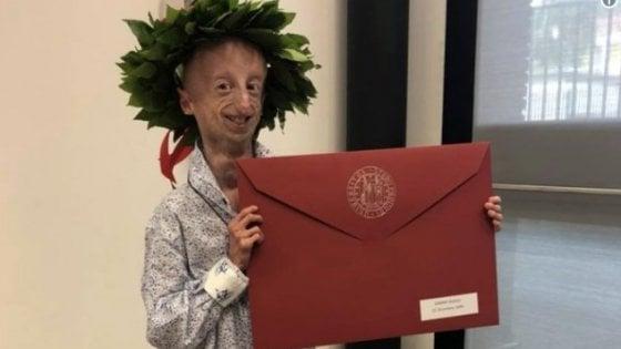 Sammy Basso, volto simbolo della lotta alla Progeria, si laurea con il massimo dei voti