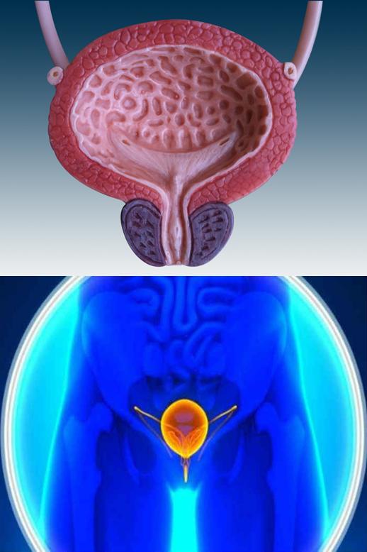 Vescica neurologica 1