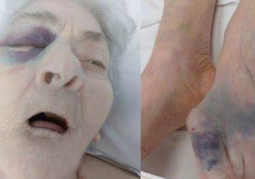 Anziana con fratture multiple in RSA: Nas di Alessandria indagano sull'accaduto