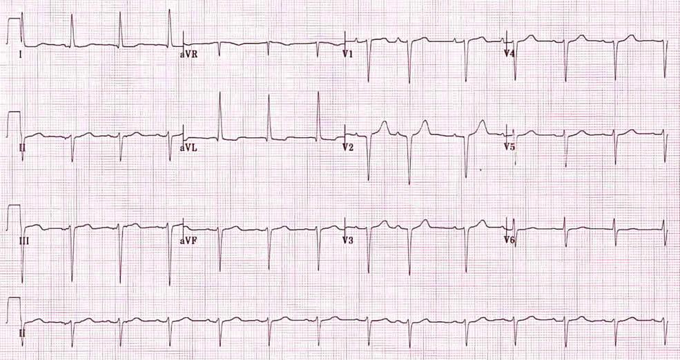Emiblocco Anteriore Sinistro ed Emiblocco Posteriore Sinistro 1
