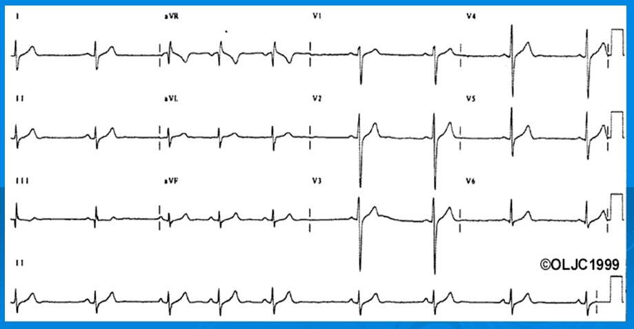 Emiblocco Anteriore Sinistro ed Emiblocco Posteriore Sinistro 2