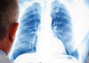 Epidemia di polmonite nel Bresciano: oltre 150 casi