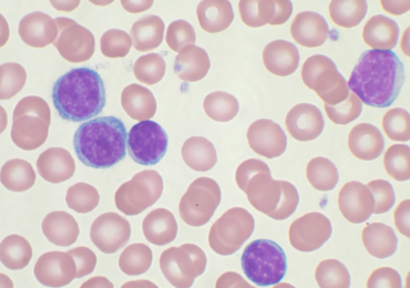 Nuova Terapia per trattamento leucemieDLBCL e LLA: Tisagenlecleucel