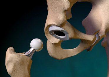 Protesi di femore, anca, ginocchio e spalla: il Lazio ha gli ospedali migliori