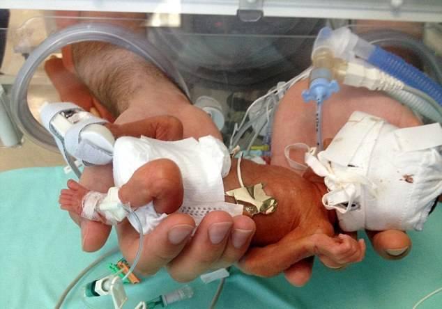 Oggi si celebra la giornata mondiale del neonato prematuro