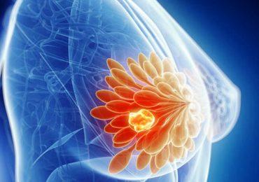 Ricerca, provata l'efficacia di un antibiotico per l'acne nella terapia per il tumore al seno