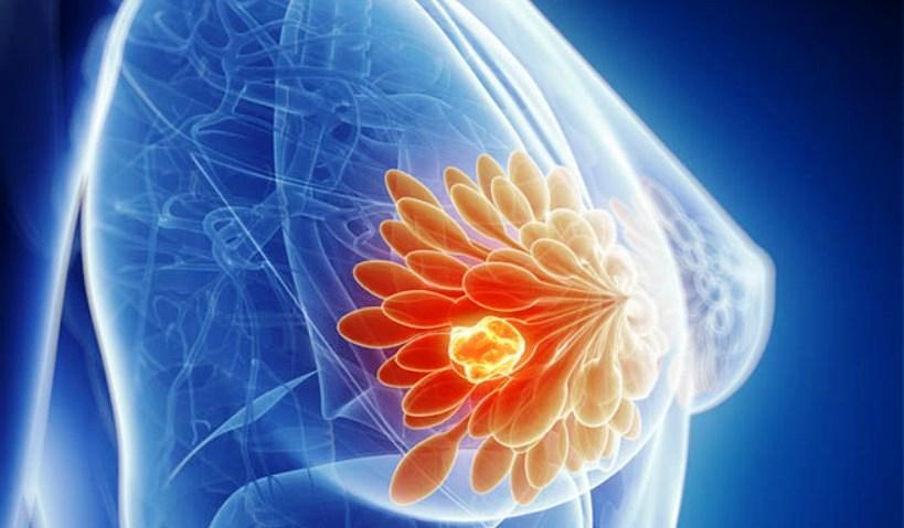 terapia iniettiva per carcinoma prostatico
