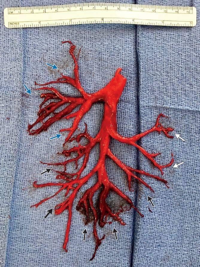 Emottisi con espettorazione di calco dell'albero bronchiale destro: un caso clinico