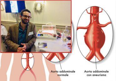 EnduraGel: l'idrogel in grado di prevenire la rottura di un aneurisma