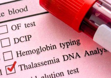 Beta talassemia, l'efficacia della terapia genica dimostrata da un trial clinico