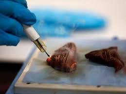 iKnife: l'elettrobisturi intelligente in grado di individuare le cellule tumorali in tempo reale 1
