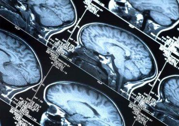 Parkinson, promettono bene le trasfusioni con un mix di mille proteine