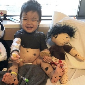 """A Doll Like Me: la bambola che aiuta i bimbi malati ad accettare la loro """"diversità"""" 2"""
