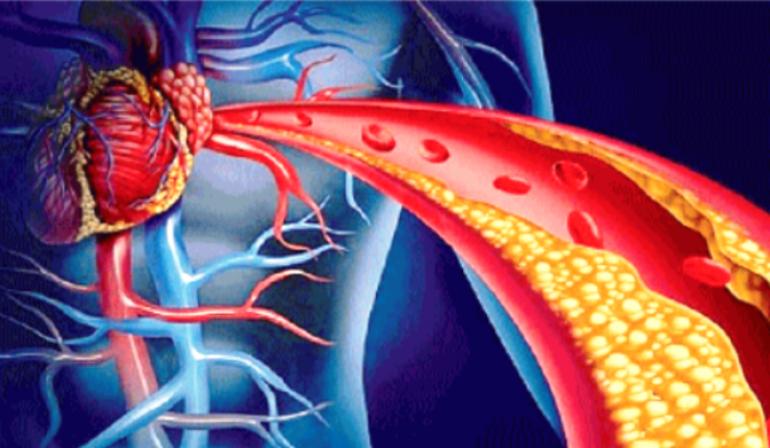 Malattie cardiovascolari, in arrivo i nuovi scudi salva-cuore