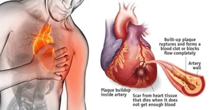 Pillole di Educazione Sanitaria: Prevenzione e complicanze delle malattie cardiovascolari 1