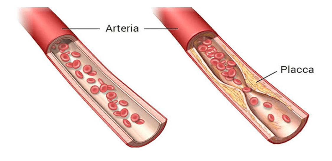 Pillole di Educazione Sanitaria: Prevenzione e complicanze delle malattie cardiovascolari