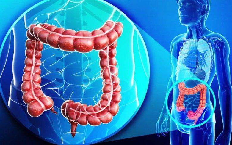 Tumore del colon-retto, individuato un gene responsabile