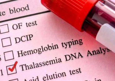 Beta-talassemia, nuove opportunità di cura dalla terapia genica