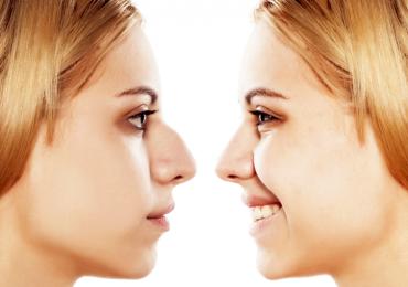 Medicina estetica e chirurgia molecolare: più belli in pochi minuti