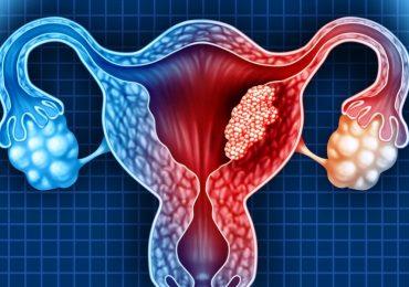 Tumore ovarico: nuove terapie e importanza della prevenzione