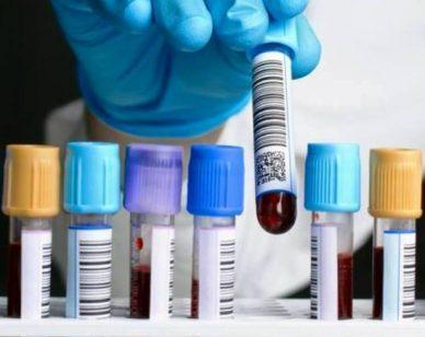 Leucemie, la ricerca fa enormi progressi