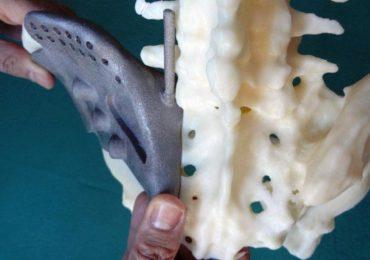 Tumori all'apparato scheletrico: nuove tecnologie al servizio della chirurgia