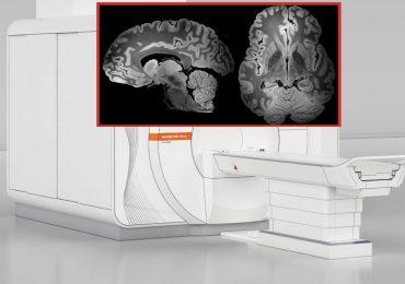L'immagine più definita di sempre del cervello umano grazie ad una risonanza magnetica durata 100 ore