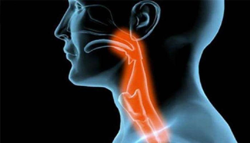 virus hpv e tumore alla gola medicamente moderne pentru tratamentul paraziților